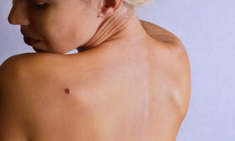 Top 10 Risk Factors Of Melanoma And How To Prevent It – The Fresh Toast